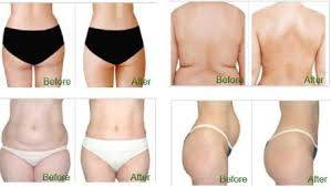 Be Summer Ready i-Lipo Event!