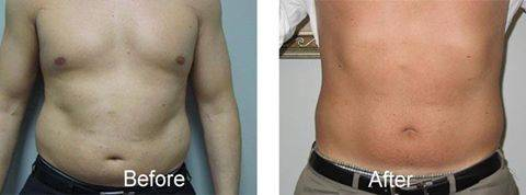 Stubborn Fat Doesn't Stand a Chance!