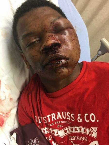GRAPHIC IMAGES:   Police: Teen resisted arrest, led to use of physical force - TROY POLICE DEPARTMENT