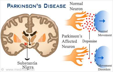 Parkinson's Disease - More Than Just the Shakes